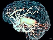 Brain scan after a stroke