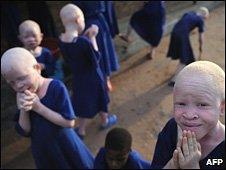Albino children in a school for the blind in Tanzania