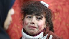 طفلة سورية من الفغزطة الشرقية