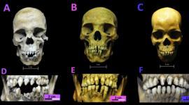 El sufrimiento que revelan los esqueletos de 3 esclavos africanos del siglo XVI descubiertos en México