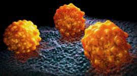 Cómo reconocer los síntomas del cáncer de páncreas, considerado el más agresivo