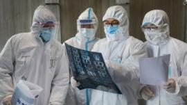 Qué hay detrás de los cambios en la forma de contar los casos de coronavirus confirmados en China