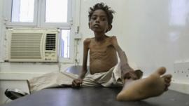 A 5 year old boy on a hospital bed in Yemen