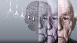 Conceptual computer artwork showing the brain of an elderly man affected by Alzheimer's disease.