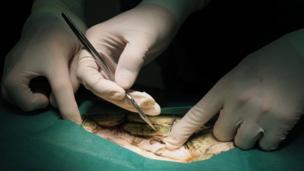 การผ่าตัดเต่า