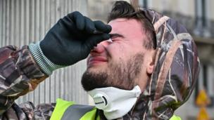 A protester puts in eyedrops after French police used tear gas in Paris