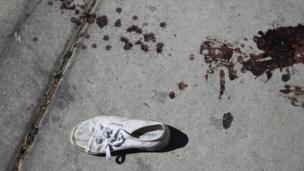 Zapatilla con sangre en el suelo.