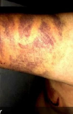تم تعذيب شادي بالضرب وحرق الجسد بسيخ حديدي