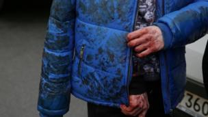"""Пострадавший от взрыва в питерском метро около станции """"Сенная площадь"""""""