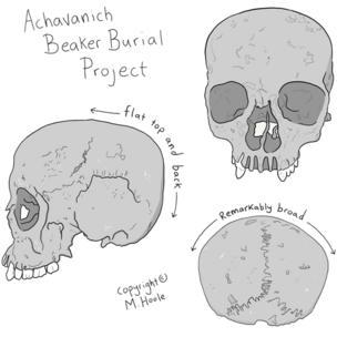 Achavanich skull
