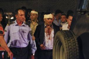 زوران زئيف وهو مصاب ويحيط به أفراد من الشرطة