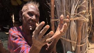 Huyu ni mama Audan Loteng' Takwa aliye na umri wa miaka 63.