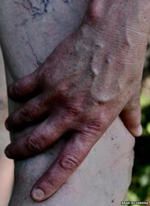 હાથ અને પગનો ફોટો