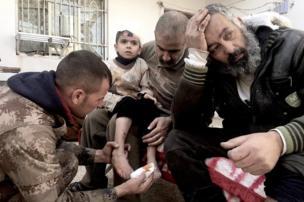 طفل عراقي يتلقى العلاج علي يد القوات الخاصة