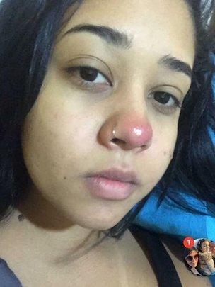 Layane Dias con una bola roja en la nariz.