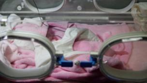 Baby giant panda twins in an incubator