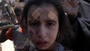 جروح على وجه طفلة موصلية نازحة من مدينة الموصل القديمة