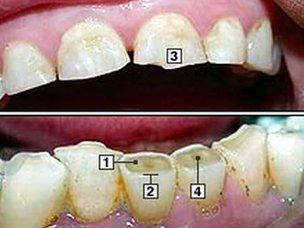Daños dentales por bruxismo.