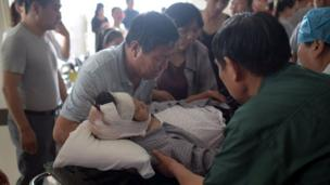 """A victim with a head injury lies on a stretcher at the hospital in Funing, in Yancheng, in China""""s Jiangsu province on June 24, 2016"""
