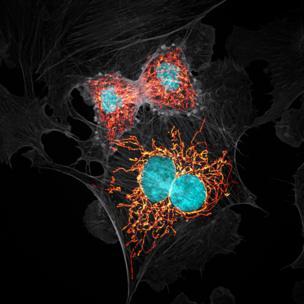Células que se dividen