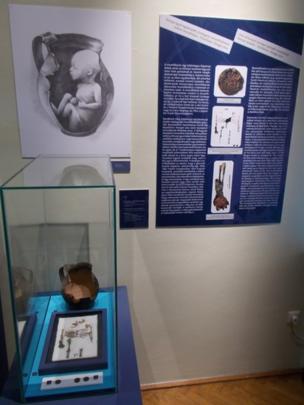 Exhibición de restos óseos