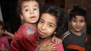 يعاني الأطفال من أمراض الطفح الجلدي بسبب ارتفاع درجات الحرارة.