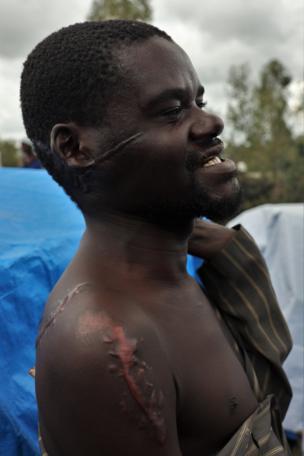 Un homme avec des citatrices de machette sur son visage et ses épaules.