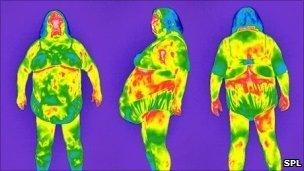 Thermograms of an obese woman. Pic Tony McConnell/SPL