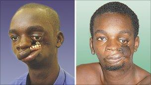 John Bortey before and after his surgery