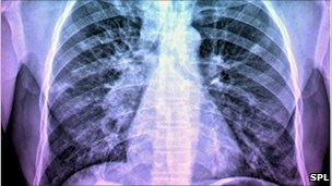 X-ray of the chest of a patient with TB