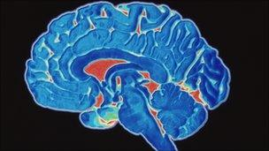 A coloured CT scan of a brain