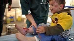 A Libyan boy is treated after being wounded by shelling in Misrata - 25 April 2011