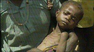 A malnourished boy in Somalia in 1992