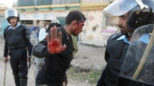 An injured Pakistani policeman gestures to be left alone by the media - 2009