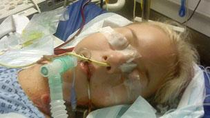 Kirstie after the transplant operation