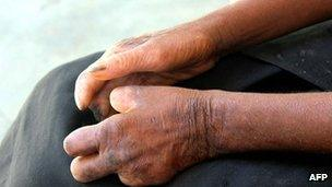 Hands of a Madagascan leprosy patient