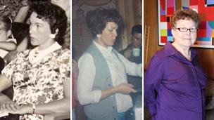 Timmie Jean Lindsey in 1962 before her operation (left), just after (centre) and today