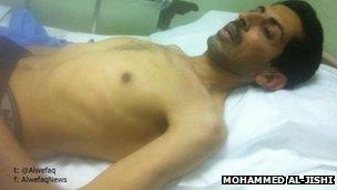 Abdulhadi al-Khawaja in hospital (3 April 2012)