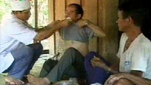 A doctor checks men in Vietnam