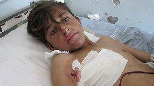 A wounded Afghan boy is treated in Kunar province. Photo: 13 February 2013