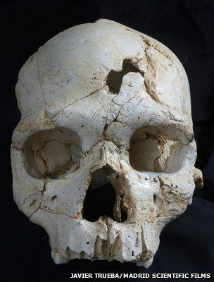 Frontal view of Cranium 17 showing the position of the two traumatic events