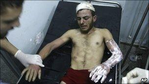 An injured Palestinian man is treated at Najar hospital, Rafah, in the Gaza Strip, on 5 September, 2010