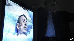 A surgeon (seen in shadow) shows video of Abdu Abdel-Monaim at a Cairo hospital, 17 January