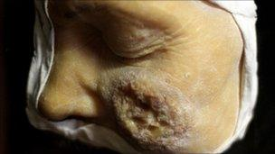 A wax cast of a STI sufferer on display in a private medical museum in Paris