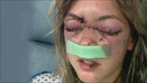 Samantha Sadler after the attck