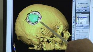 Scan of brain tumour