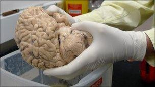 Brain of a deceased Alzheimer's patient