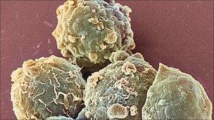 Blood cancer cells