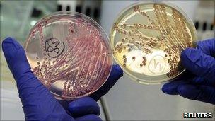 An employee holds petri dishes with bacterial strains of EHEC bacteria at the University Clinic Eppendorf in Hamburg, 2 June 2011.