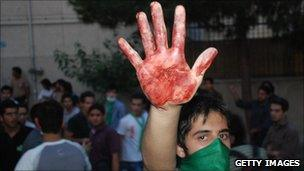 Protester holds up bloodied hand in Tehran rally.